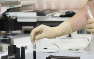a lab technician handles a vile